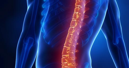 Fisioterapia nas Afecções da Coluna Vertebral